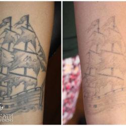 Usunięcie tatuażu, usuwanie tatuaży, usuwanie tatuazu torun, usuwanie tatuażu, usuwanie tatuażu toruń, laserowe usuwanie tatuażu, wywabianie tatuażu, usuwanie tatuazu, laserowe usuwanie tatuażu toruń, laser toruń,