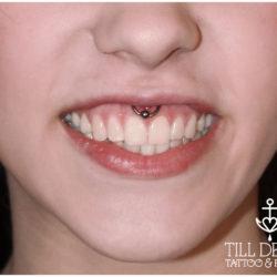 smiley, Microdermal, piersing, piercing bydgoszcz, piercing, piercing sutkow, piercing włocławek, piercing torun, piercing sutka, piercing wloclawek, percing, przekuwanie ciala, przekłuwanie języka, studio piercing bydgoszcz, piercing inowrocław, piercing ucho, piercing toruń, studio piercingu, piercing grudziądz, rozpychanie uszu, piercing ucha, piercing intymny, studio piercingu bydgoszcz, pircing bydgoszcz, kolczyk, kolczykowanie, kolczyki toruń, studio kolczyków, persing, piercing, salon piercingu, profesjonalny piercing, septum, daith, industrial, przekłucie języka, przekłuwanie ciała,